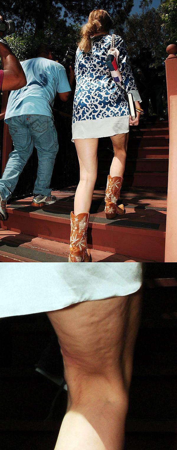 Mischa Barton + Short Skirt = Cellulite